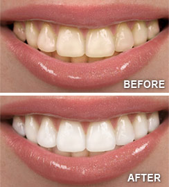 Before/after teeth whitening